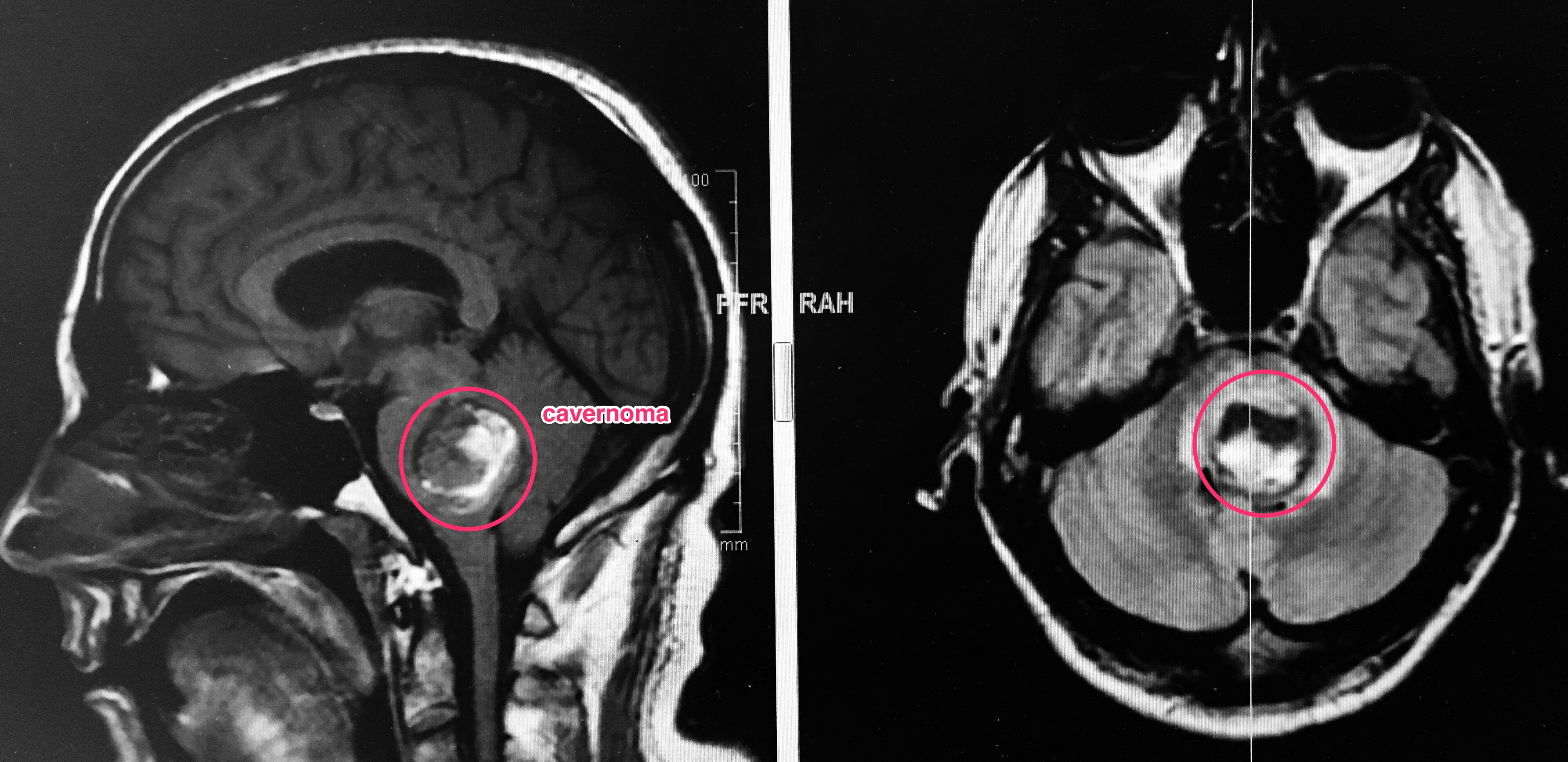 resonancia cerebral, cavernoma en tronco cerebral